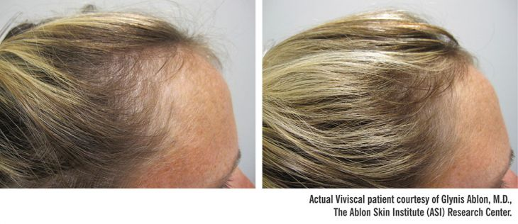 Viviscal Professional Before and After Treatment