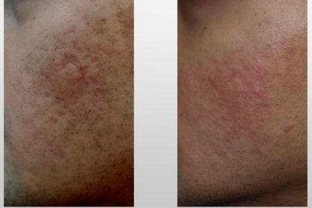 Infini-Before-After-39.jpg